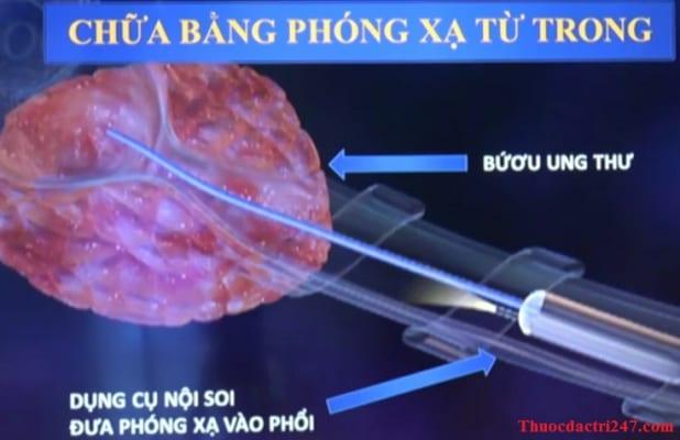 phuong phap dieu tri ung thu phoi bang phong xa tu trong-min