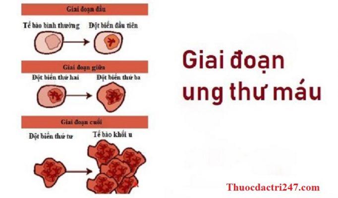 Ung-thu-mau-Nguyen-nhan-trieu-chung-va-dau-hieu-benh