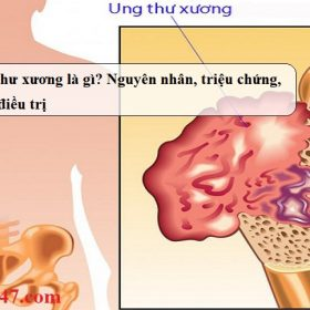 Ung-thu-xuong-la-gi-Nguyen-nhan-trieu-chung-cach-dieu-tri