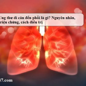 Ung-thu-di-can-den-phoi-la-gi-Nguyen-nhan-trieu-chung-cach-dieu-tri