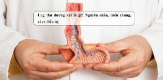 Ung-thu-duong-vat-la-gi-Nguyen-nhan-trieu-chung-cach-dieu-tri