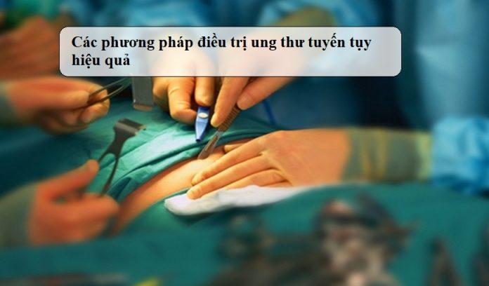 Cac-phuong-phap-dieu-tri-ung-thu-tuyen-tuy-hieu-qua