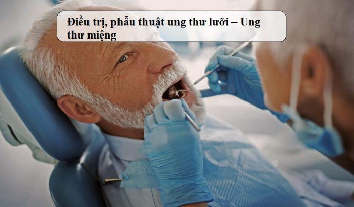 Dieu-tri-phau-thuat-ung-thu-luoi-Ung-thu-mieng