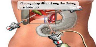 Phuong-phap-dieu-tri-ung-thu-duong-mat-hieu-qua