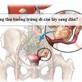 Ung-thu-buong-trung-di-can-lay-sang-dau