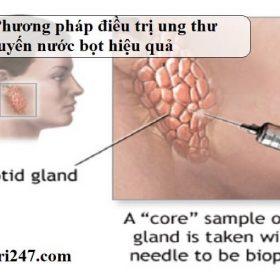 phuong phap dieu tri ung thu tuyen nuoc bot hieu qua1